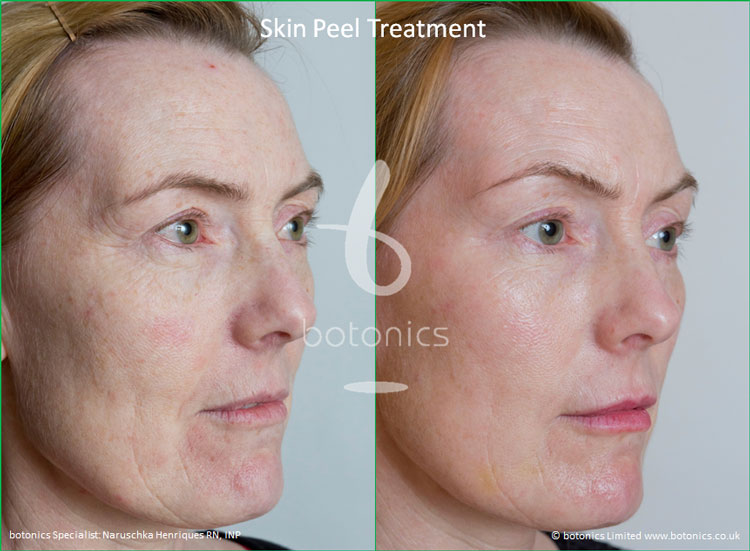 skin peel treatments before and after photos botonics naruschka henriques 4