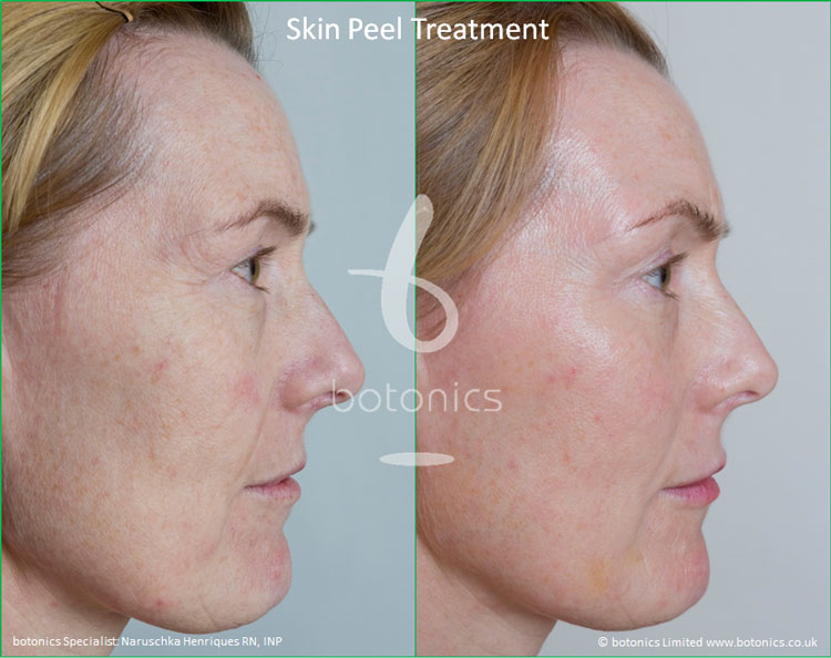 skin peel treatments before and after photos botonics naruschka henriques 5