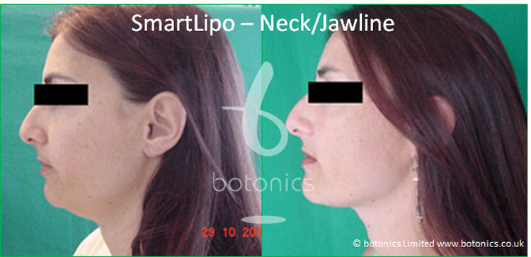 smartlipo laser lipo female neck jawline before and after photo botonics