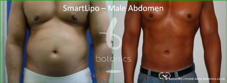 smartlipo laser lipo male abdomen love handles before and after photo botonics