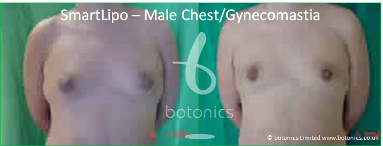 smartlipo laser lipo male chest gynecomastia before and after photo botonics