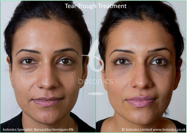 tear trough fillers treatment before and after botonics naruschka henriques
