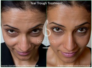 tear_trough_fillers_treatment_before_and_after_botonics_naruschka_henriques_3