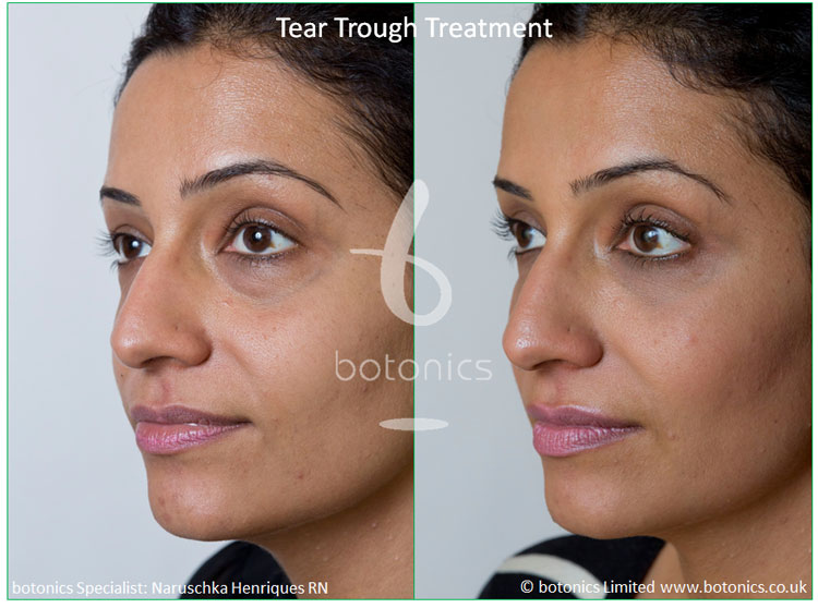 How much does tear trough filler cost? - botonics