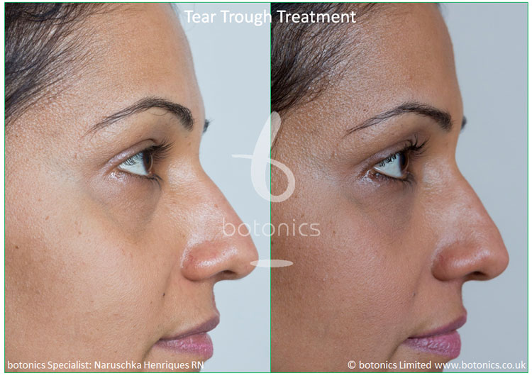 Tear Trough Fillers Before and After Pictures - botonics