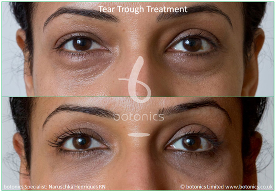 female tear trough treatment before and after