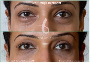 tear_trough_fillers_treatment_before_and_after_botonics_naruschka_henriques_6