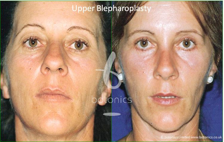 upper blepharoplasty eyelid surgery before and after botonics