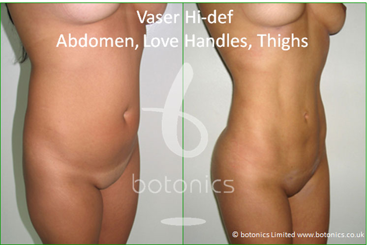 vaser lipo hi def female abdomen love handles thighs before and after 4 months photo botonics