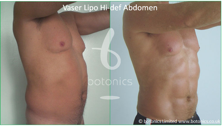 vaser lipo hi def male abdomen before after botonics 1