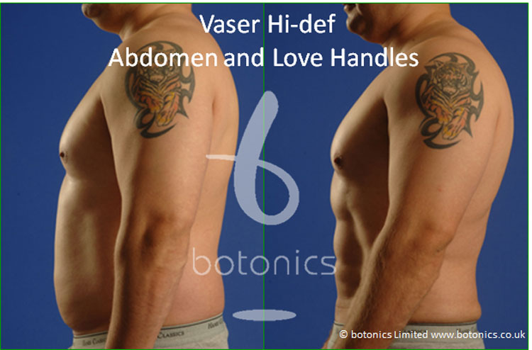 vaser lipo hi def male abdomen love handles before and after 4 months photo botonics