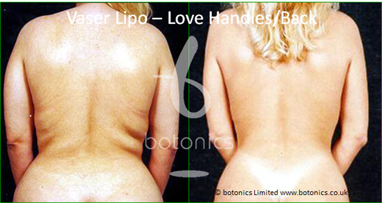 vaser lipo liposelection female back love handles before and after photo botonics