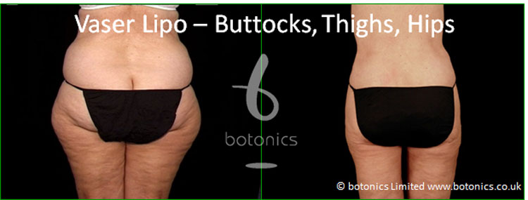 vaser lipo hi volume liposelection female buttocks thighs before and after photo botonics