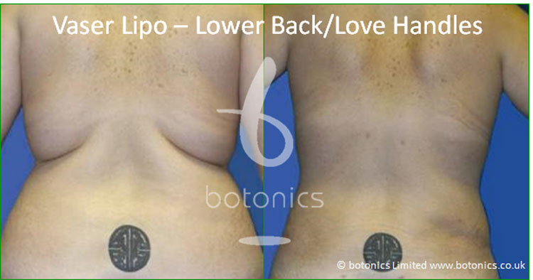 vaser lipo liposelection female lower back love handles before and after photo botonics