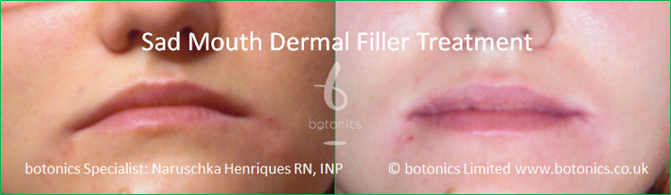 dermal fillers sad mouth oral commissures marionette lines juvederm treatment before and after botonics naruschka henriques 1