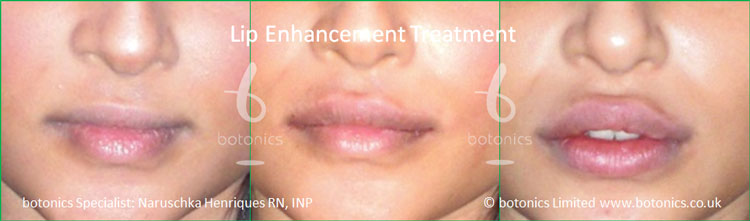 lip augmentation london juvederm before and after botonics naruschka henriques 1