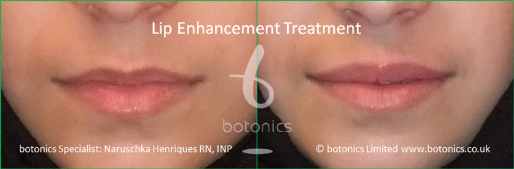 lip fillers treatment juvederm before and after botonics naruschka henriques 1