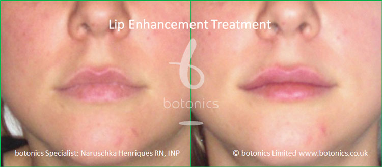 lip plumping treatment juvederm before and after botonics naruschka henriques 1