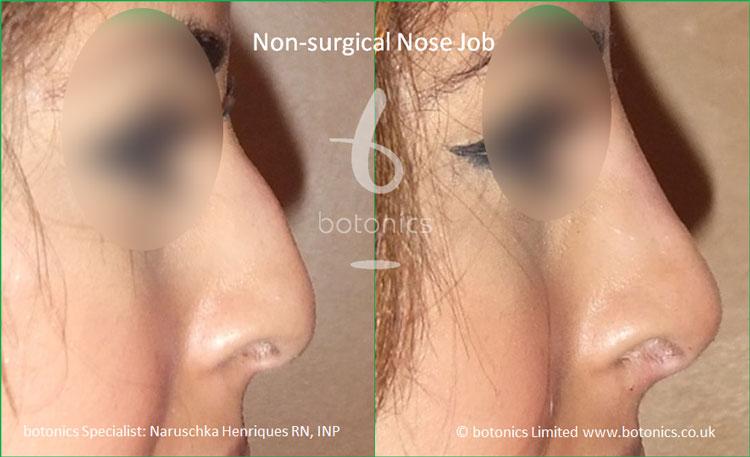non surgical nose job dorsal hump 2 dermal filler botonics naruschka henriques