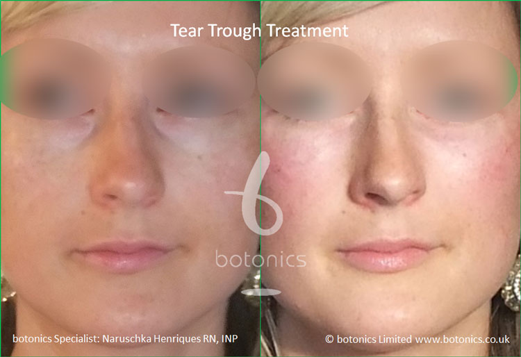 tear troughs deformity treatment before and after botonics naruschka henriques 1