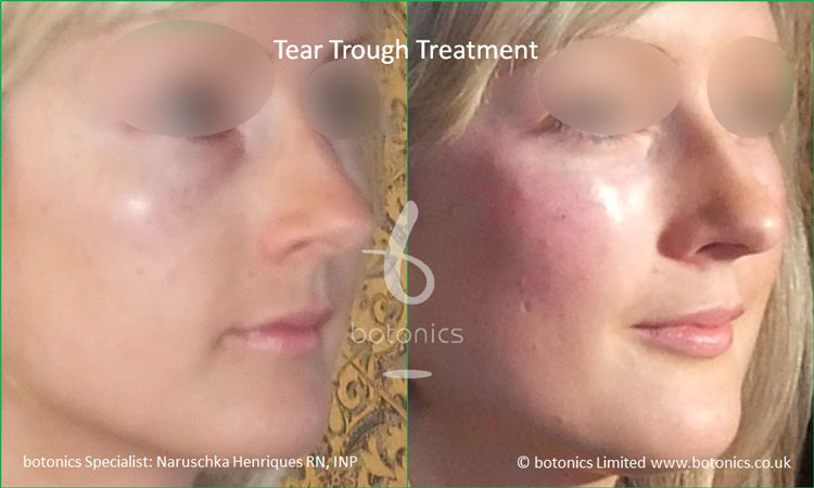 tear troughs deformity treatment before and after botonics naruschka henriques 2