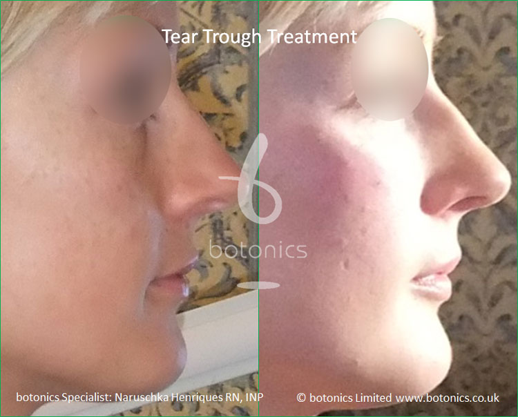 tear troughs deformity treatment before and after botonics naruschka henriques 3