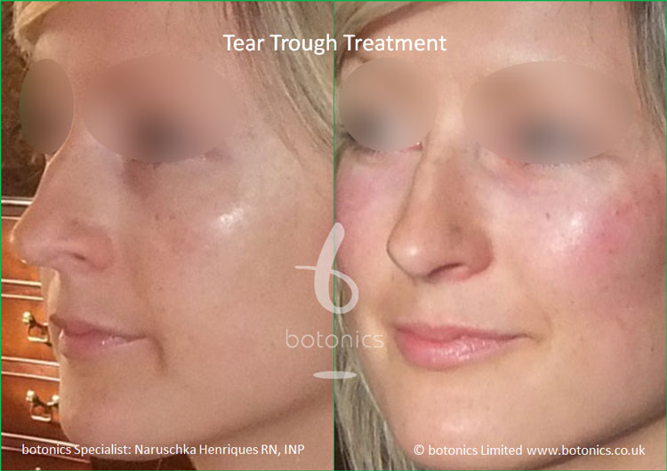 tear troughs deformity treatment before and after botonics naruschka henriques 4