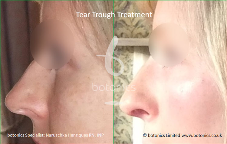 tear troughs deformity treatment before and after botonics naruschka henriques 5