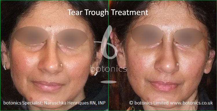 tear troughs filler treatment before and after botonics naruschka henriques 1