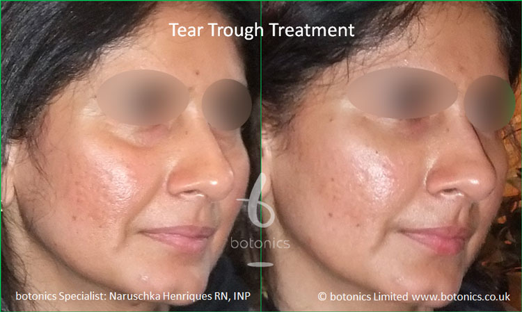 tear troughs filler treatment before and after botonics naruschka henriques 2