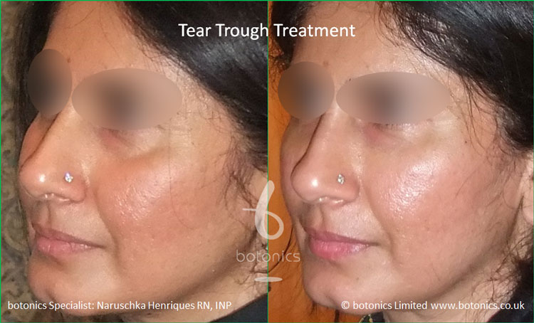 tear troughs filler treatment before and after botonics naruschka henriques 3