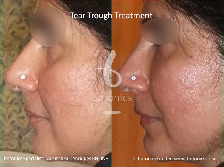 tear troughs filler treatment before and after botonics naruschka henriques 4