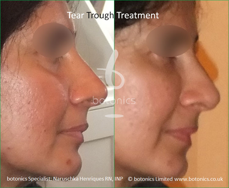 tear troughs filler treatment before and after botonics naruschka henriques 5