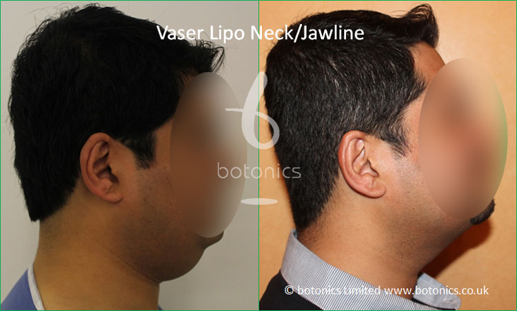 Vaser Hi-volume Male Neck/Jawline from Right Profile