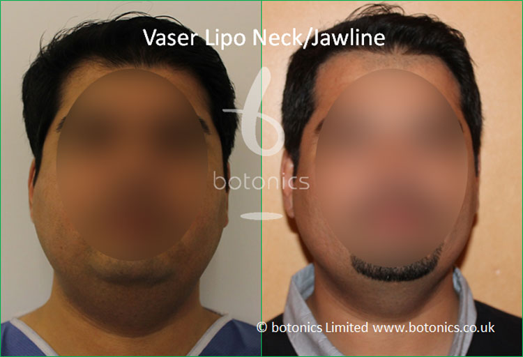 Vaser Hi-volume Male Neck/Jawline from Front