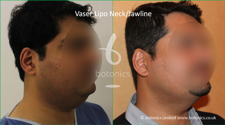 Vaser Hi-volume Male Neck/Jawline from 3/4 Right Profile