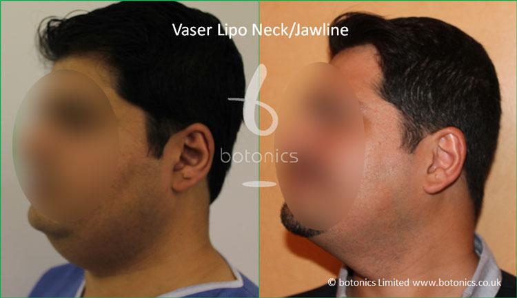 Vaser Hi-volume Male Neck/Jawline from 3/4 Left Profile