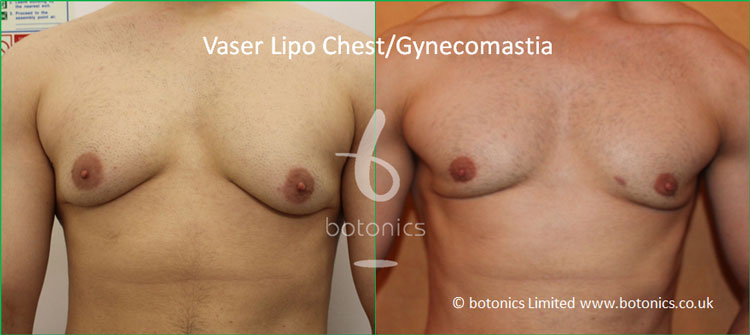 Vaser Lipo Male Gynecomastia Before and After Photo