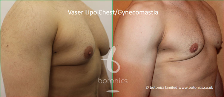 Vaser Lipo Male Gynecomastia Before and After Photo Three Quarter from Right