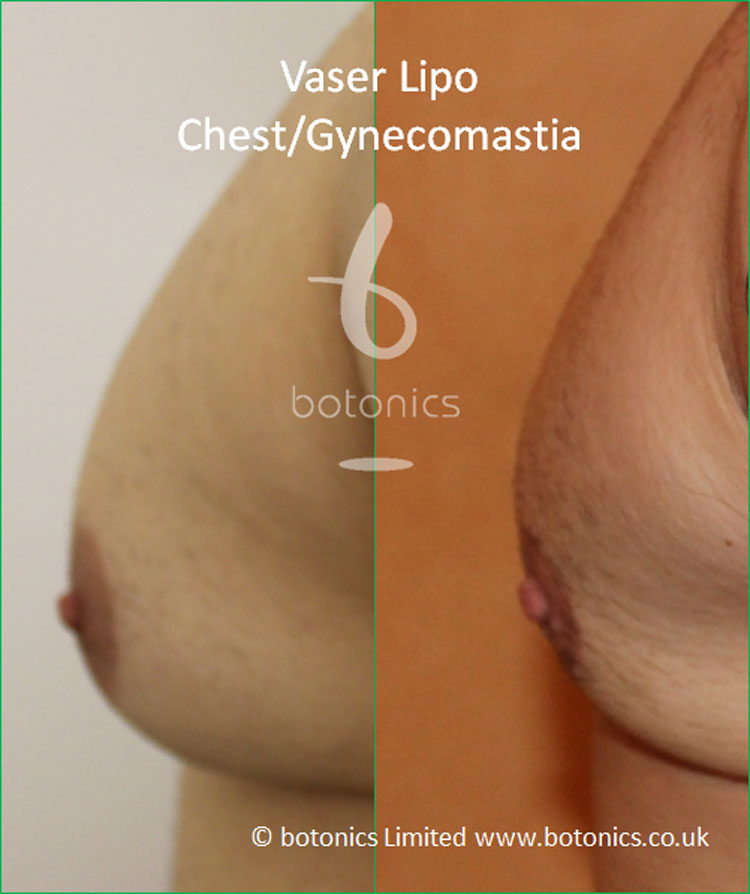 Vaser Lipo Male Gynecomastia Before and After Photo Left Profile