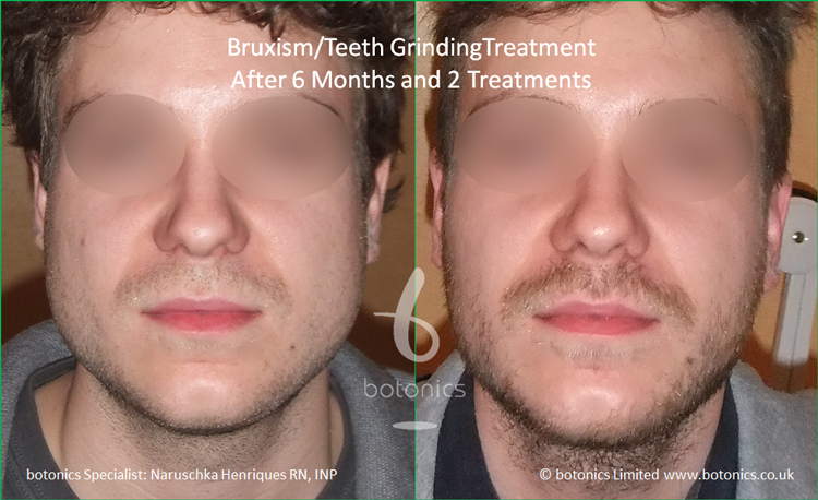 Botox injections to jaw muscles to reduce bruxism clenching teeth grinding after 2 treatments