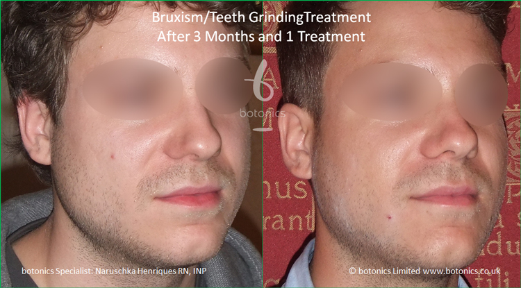 Botox injections to jaw muscles to reduce bruxism clenching teeth grinding after 1 treatment