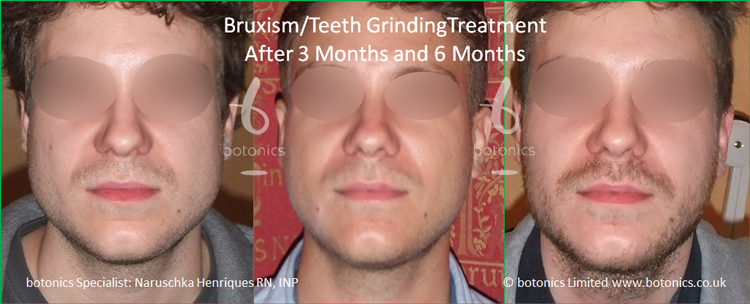 Botox injections to jaw muscles to reduce bruxism clenching teeth grinding