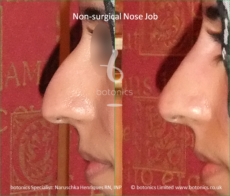 No Knife Nose Job for Hooked Nose