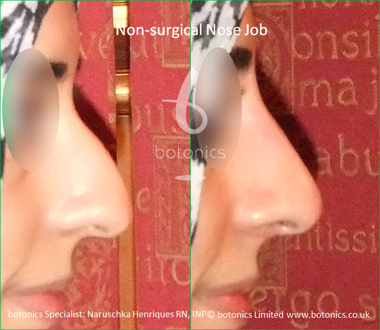 No Knife Nose Job for Hooked Nose from Right