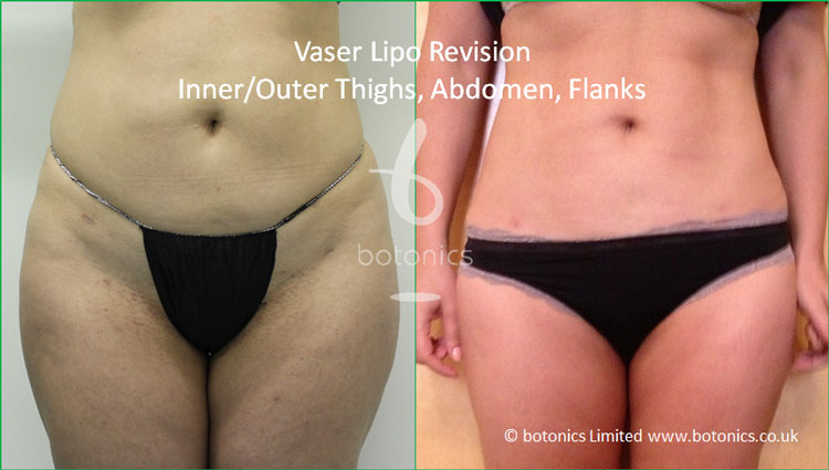 Vaser standard definition 5 areas local anaesthetic 6 months post op before after