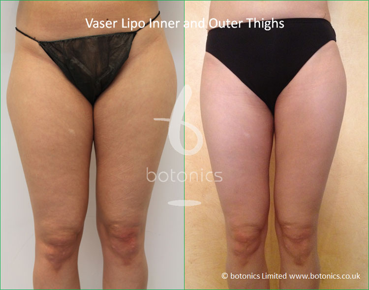 Before and after photo of female thighs Vaser Lipo standard def inner outer front view