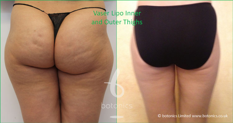 Before and after photo of female thighs Vaser Lipo standard def inner outer