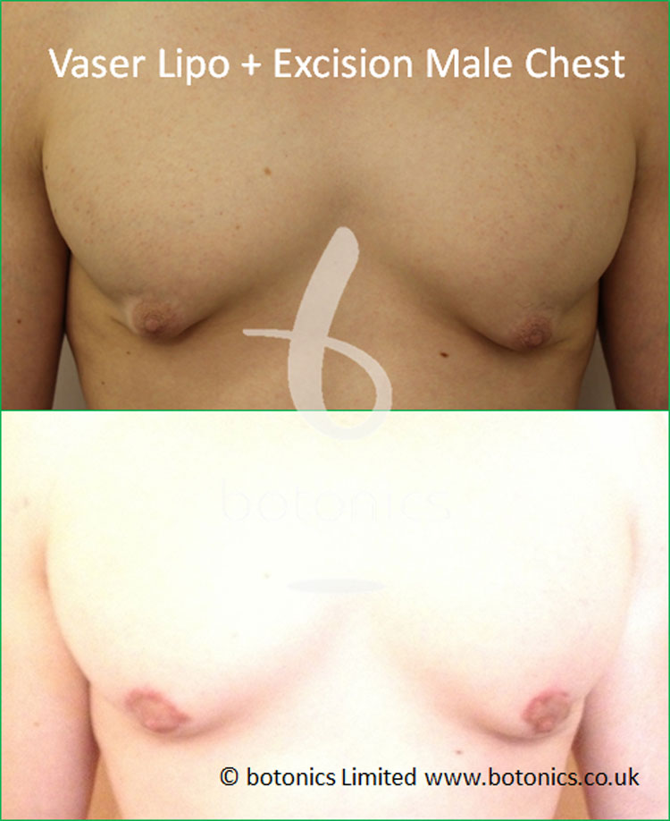 Vaser for gynecomastia plus surgical skin removal