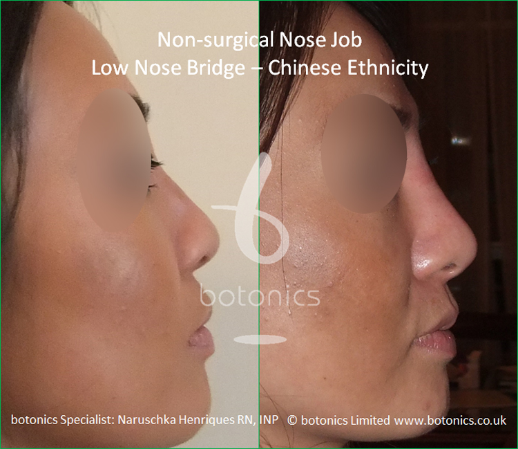 Before and after Chinese nose enhancement to elevate bridge and project columella right profile